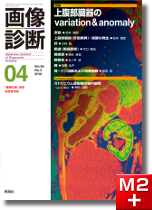 画像診断 2016年4月号(Vol.36 No.5) 上腹部臓器のvariation & anomaly