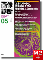 画像診断 2016年5月号(Vol.36 No.6) エキスパートの診断過程を学ぶ中枢神経系の画像診断