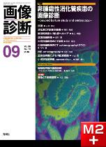 画像診断 2016年9月号(Vol.36 No.10) 非腫瘍性消化管疾患の画像診断 ─beyond barium study and endoscopy─