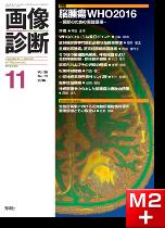 画像診断 2016年11月号(Vol.36 No.13) 脳腫瘍WHO2016―読影のための実践講座―