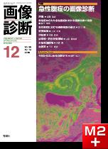 画像診断 2016年12月号(Vol.36 No.14) 急性腹症の画像診断
