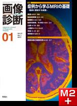 画像診断 2017年1月号(Vol.37 No.1) 症例から学ぶMRIの基礎─臨床に直結する知識─