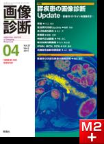 画像診断 2017年4月号(Vol.37 No.5) 膵疾患の画像診断Update ─診療ガイドラインを踏まえて─