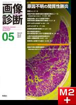 画像診断 2017年5月号(Vol.37 No.6) 原因不明の間質性肺炎