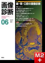 画像診断 2017年6月号(Vol.37 No.7) 歯・顎・口腔の画像診断