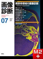 画像診断 2017年7月号 (Vol.37 No.8) 側頭骨領域の画像診断─minimum requirement─
