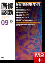 画像診断 2017年9月号(Vol.37 No.10) 脊椎の画像診断再入門