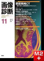 画像診断 2017年11月号(Vol.37 No.13) 頭部単純CT―読影の基本と偶発的所見のマネジメント―