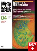 画像診断 2018年4月号(Vol.38 No.5) 解剖から迫る呼吸器画像診断