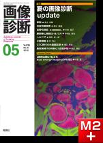 画像診断 2018年5月号(Vol.38 No.6) 腸の画像診断update