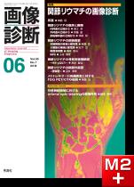 画像診断 2018年6月号(Vol.38 No.7) 関節リウマチの画像診断