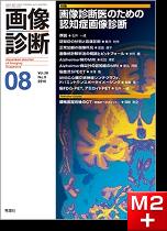 画像診断 2018年8月号(Vol.38 No.9) 画像診断医のための認知症画像診断