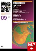 画像診断 2018年9月号(Vol.38 No.10) 肝の画像診断update