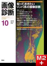 画像診断 2018年10月号(Vol.38 No.12) 知っておきたいリンパ系の画像診断