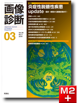 画像診断 2019年3月号(Vol.39 No.3) 炎症性脱髄性疾患update