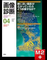 画像診断 2019年4月号(Vol.39 No.5)肺に淡い陰影が広がっていたらどう診断するか?