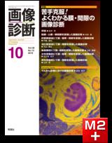 画像診断 2019年10月号(Vol.39 No.12)苦手克服! よくわかる膜・間隙の画像診断