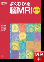 画像診断別冊 KEY BOOKシリーズ よくわかる脳MRI第3版