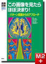 画像診断2012年臨時増刊号(Vol.32 No.4)この画像を見たらほぼ決まり!