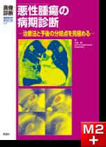 画像診断 2013年臨時増刊号(Vol.33 No.4) 悪性腫瘍の病期診断 -治療法と予後の分岐点を見極める-