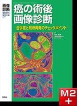 画像診断 2013年臨時増刊号(Vol.33 No.11) 癌の術後画像診断 -合併症と局所再発のチェックポイント-