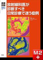 画像診断 2014年臨時増刊号(Vol.34 No.4) 放射線科医が診断すべき日常診療で迷う症例