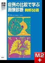 画像診断 2014年臨時増刊号(Vol.34 No.11) 症例の比較で学ぶ画像診断 胸部50選