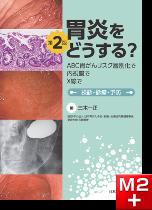 胃炎をどうする? ABC胃がんリスク層別化で、内視鏡で、X線で 第2版