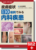 カラーアトラス 皮膚症状110症例でみる内科疾患