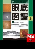 カラーアトラス眼底図譜 第6版