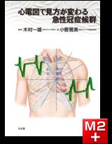 心電図で見方が変わる急性冠症候群