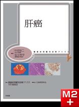 腫瘍病理鑑別診断アトラス 肝癌