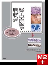 腫瘍病理鑑別診断アトラス 腎盂・尿管・膀胱癌
