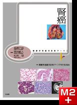 腫瘍病理鑑別診断アトラス 腎癌