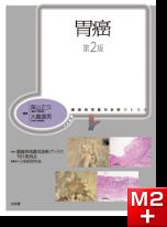 腫瘍病理鑑別診断アトラス 胃癌 第2版