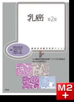 腫瘍病理鑑別診断アトラス 乳癌 第2版