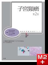 腫瘍病理鑑別診断アトラス 子宮頸癌 第2版