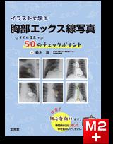 イラストで学ぶ胸部エックス線写真