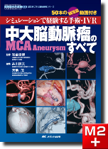 中大脳動脈瘤(MCA Aneurysm)のすべて