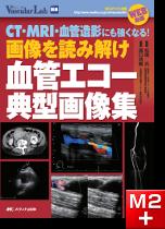 画像を読み解け 血管エコー典型画像集 [動画付き]
