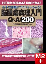 脳腫瘍病理入門Q&A200