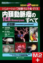 内頚動脈瘤(ICA Aneurysm)のすべて―近位部(cavernous-paraclinoid) [動画付き]