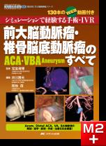 前大脳動脈瘤・椎骨脳底動脈瘤(ACA・VBA Aneurysm)のすべて[動画付き]