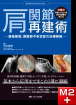 手術・リハビリをWEB動画で学べる 肩関節再建術[動画付き]
