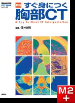 画像診断別冊 KEY BOOKシリーズ 新版 すぐ身につく胸部CT