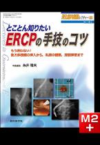 消化器内視鏡レクチャー(1巻3号)とことん知りたい ERCPの手技のコツ[動画付き]