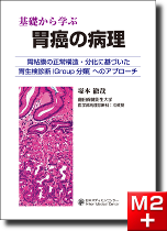 基礎から学ぶ 胃癌の病理