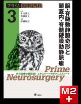 プライム脳神経外科 3 脳・脊髄動静脈奇形と頭蓋内・脊髄硬膜動静脈瘻