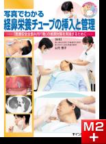 写真でわかる経鼻栄養チューブの挿入と管理