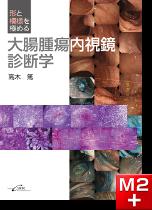 形と模様を極める大腸腫瘍内視鏡診断学